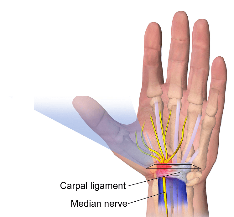 Anatomical image of the carpal ligament and median nerve entering the wrist.