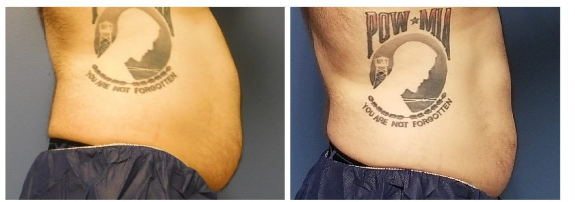 CoolSculpting before and after male tummy right side photo