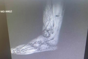 X-ray of Achilles tear